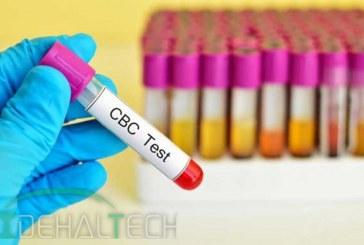 MVC در آزمایش خون چیست؟