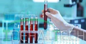 MCHC خون چیست؟