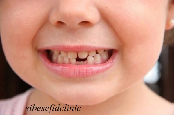 ایمپلنت دندان برای کودکان مبتلا به فقدان مادرزادی دندان